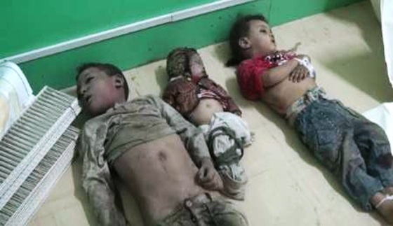 syrianfreepress_yemi_kids-killed_by_saudi